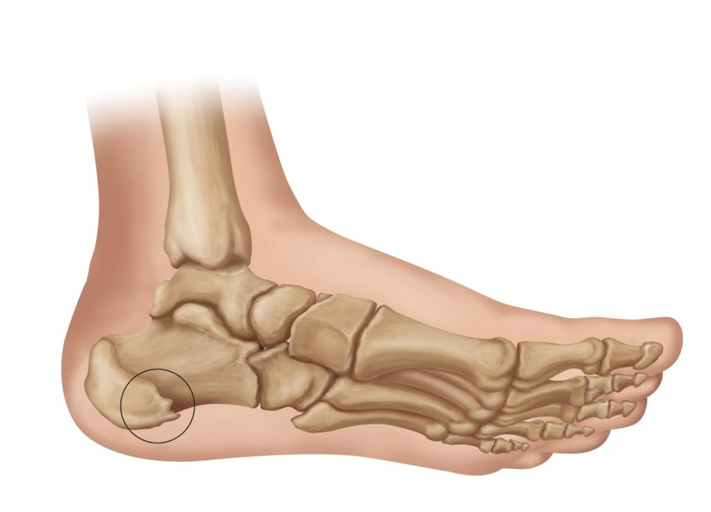 Heel Spurs Medical Illustration