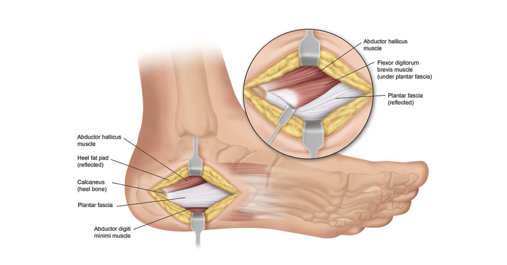 Plantar Fascia Surgery Illustration