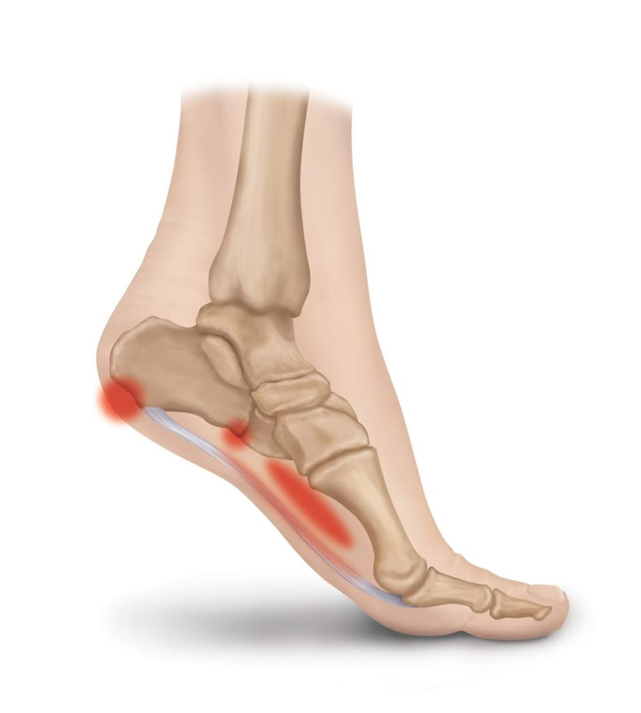 Plantar Fascia Ligament & Pain Conditions | Heel That Pain